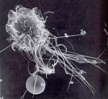makrofage.jpg