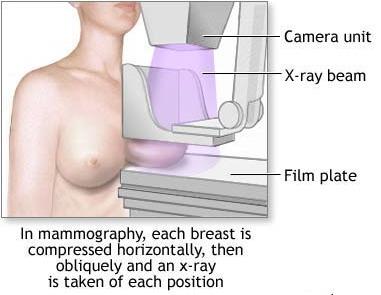mamografija-proced.jpg